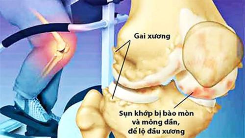 benh-thoai-hoa-khop-goi-co-chua-khoi-han-duoc-khong-2