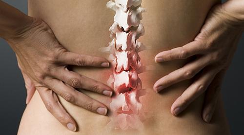 Triệu chứng của thoái hóa cột sống thắt lưng là gì?
