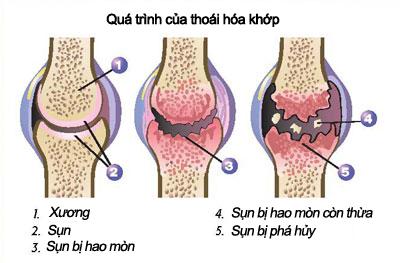 canh-bao-nguy-hiem-voi-cac-bien-chung-cua-benh-thoai-hoa-khop-1