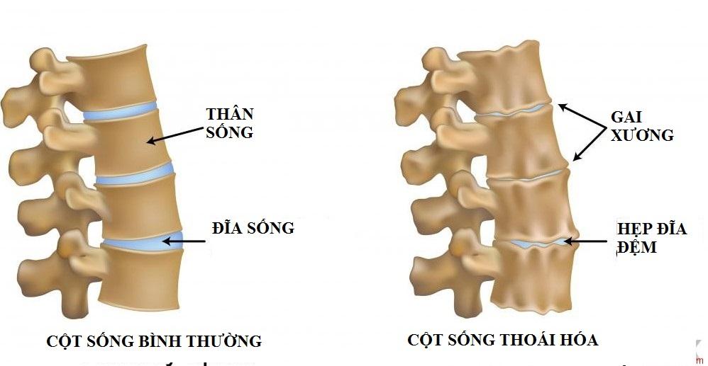 cot-song-bi-voi-hoa-nguyen-nhan-dau-3