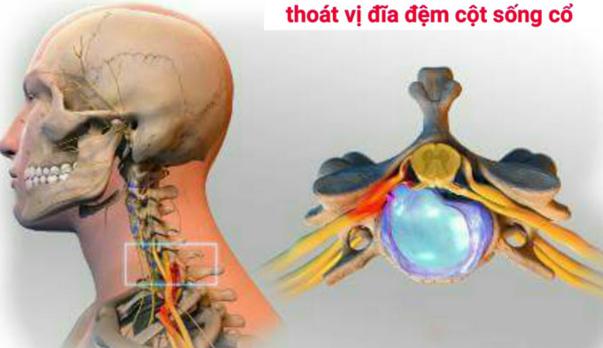 trieu-chung-cua-benh-thoai-hoa-dot-song-co-5