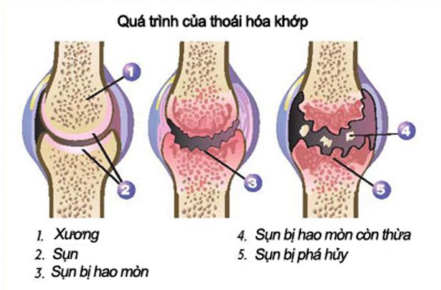 chua-thoai-hoa-khop-muon-co-nguy-hiem-khong-1