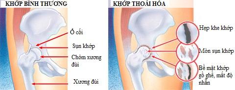 khop-hang-phat-ra-tieng-keu-khi-di-chuyen-co-nguy-hiem-khong-1
