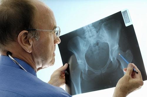 Tự nhiên bị đau xương cụt có làm sao không ? Có nguy hiểm không ?