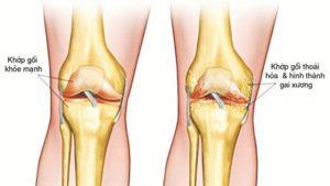 khớp gối bị thoái hóa khi đau khớp gối ở tuổi 30.jpg