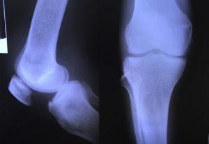 Chụp X - quang khớp gối phát hiện bệnh hoại tử xương vô khuẩn
