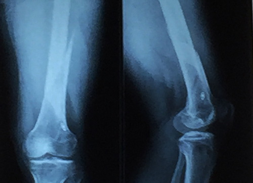 Khối u tủy xương được phát hiện khi chụp X - quang thoái hóa khớp gối