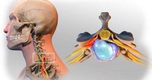 bệnh lý rễ ở cột sống cổ (C6 – C7) có thể gây ra cơn đau nhức khớp khuỷu tay.jpg
