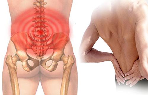 Bệnh thoái hóa cột sống thắt lưng có nguy hiểm không