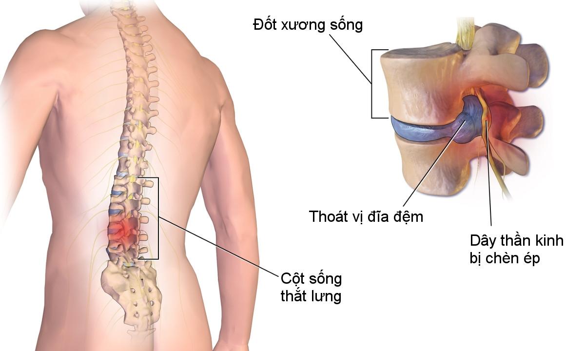 Thoát vị đĩa đệm là biến chứng của bệnh thoái hóa cột sống thắt lưng thường gặp