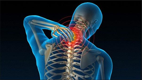 Bệnh vôi hóa cột sống cổ là dạng vôi hóa cột sống thường gặp
