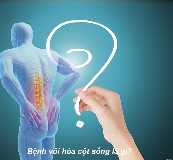 Bệnh vôi hóa cột sống là gì?
