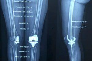 Hình ảnh X - quang khớp gối đã được thay ở một bệnh nhân trẻ tuổi