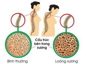 loãng xương là nguyên nhân dẫn đến những cơn đau bả vai bên trái.png