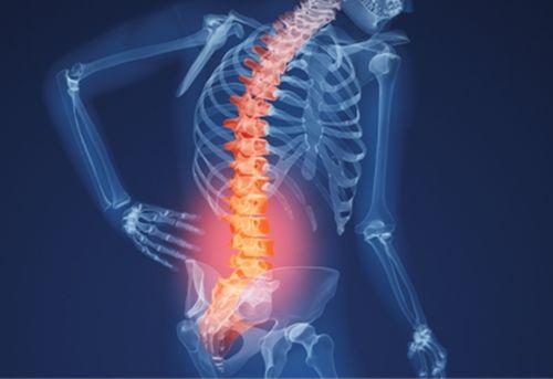 Thoái hóa cột sống thắt lưng gây đau cột sống thắt lưng