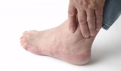 đau là triệu chứng thoái hóa khớp cổ chân