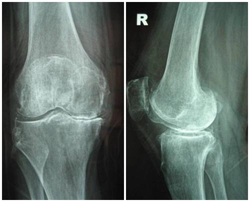 x-quang khớp gối bị thoái hóa