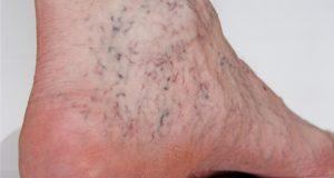 Giãn tĩnh mạch chân có thể khiến người bệnh gặp phải hiện tượng nhức mỏi tay chân