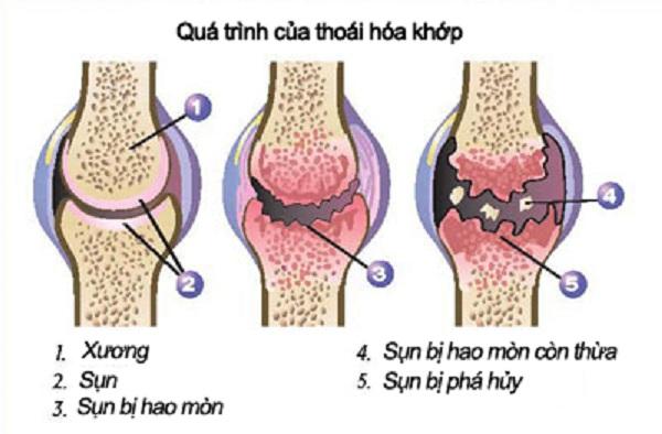 Thoái hóa khớp - Nguyên nhân gây nhức mỏi chân tay