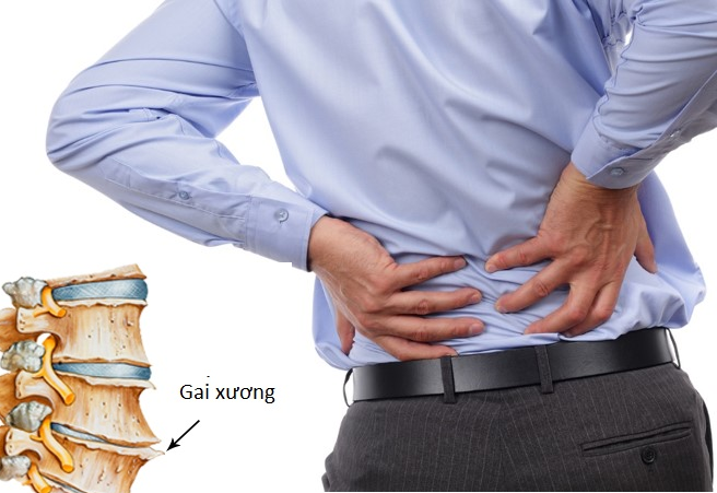 Bệnh gai cột sống lưng và cách chữa trị