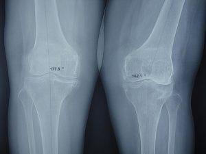 hình ảnh x - quang khớp gối giúp bác sĩ chẩn đoán bệnh chính xác hơn..jpg