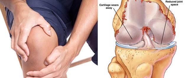Nguyên nhân gây đau khớp gối do bị thoái hóa khớp