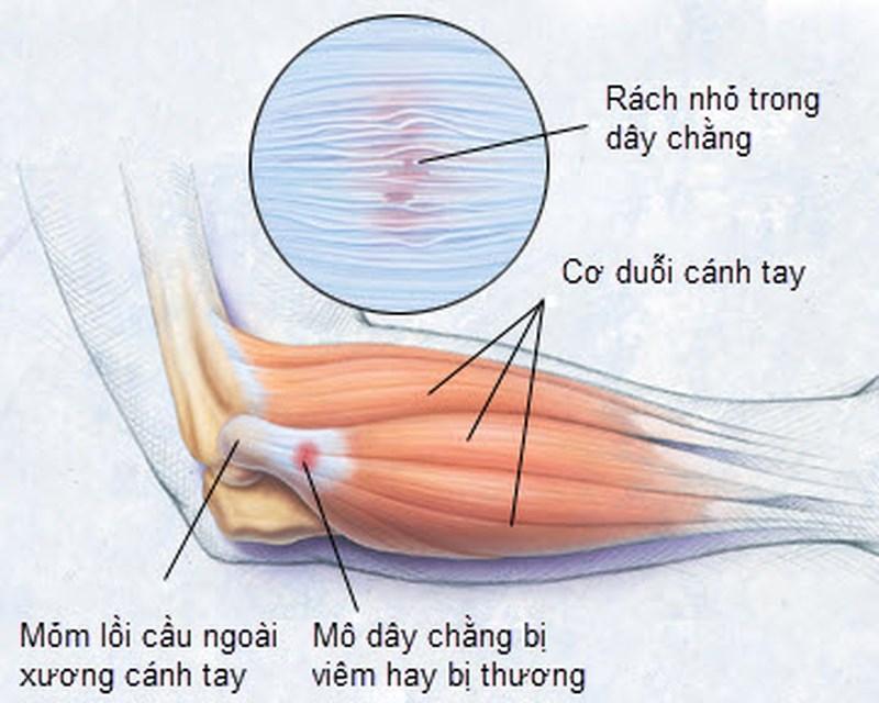 Viêm mỏm lồi cầu ngoài là bệnh thường gặp ở khuỷu tay